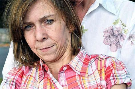 Zara Look A Like 1 zara hartshorn 15 suffers from lipodystrophy she looks