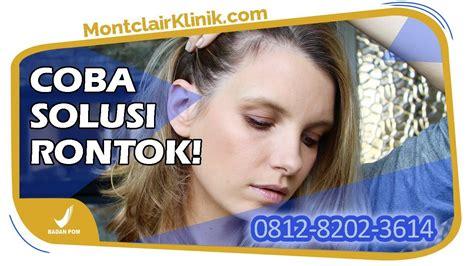 Tempat Jual Montclair Hair Serum jual montclair hair serum untuk kulit kepala kering di
