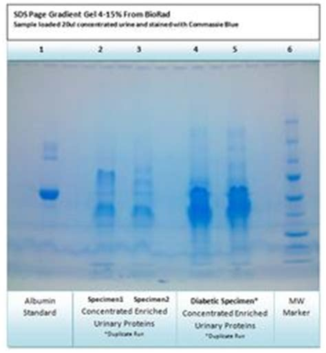 protein levels in urine normal protein levels in urine protein in urine