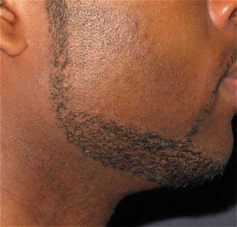 ingrown hair on chin infection ingrown facial hair pictures