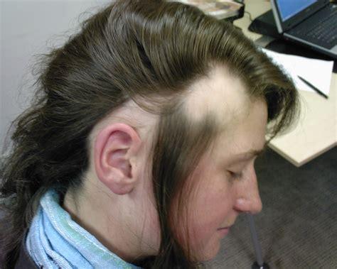 any hair tutorials for alopecia hair styles hair loss informations hair loss solutions and tips