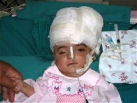 manar maged snopescom mix info baby girl who was born with one body but with