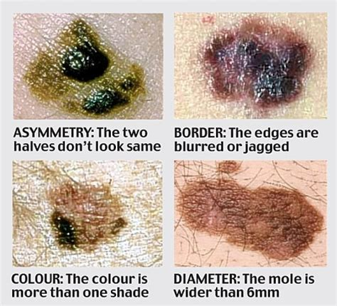 differences between malignant melanoma and a normal mole freckle or mole pictures photos