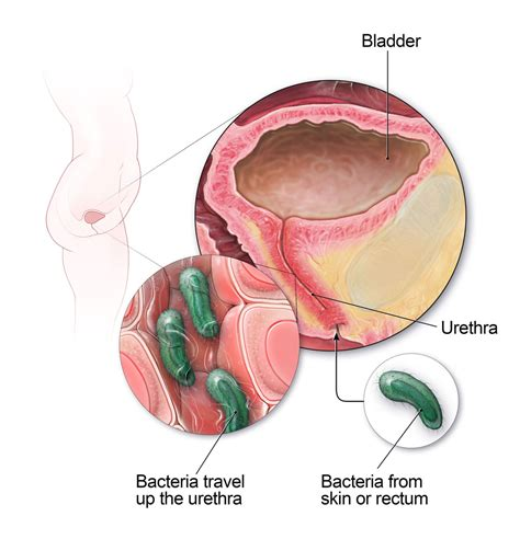 bladder infection symptoms urinary tract infection uti symptoms causes and prevention my gynae