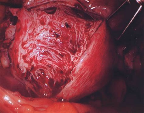 enlarged uterus after c section adenomyosis causes symptoms treatment adenomyosis