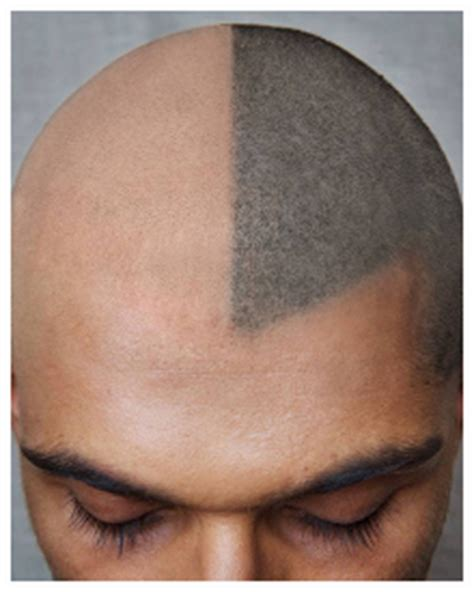scalp micropigmentation to make hair ticker pictures hair follicle tattoo om hair