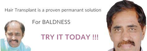 faq main hair loss hair transplant and restoration best hair transplant hyderabad hair loss treatment clinic