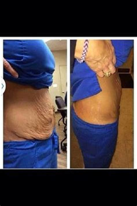 c section abs i am asked all the time and the answer is yes our wraps