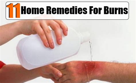 11 home remedies for burns diy health remedy