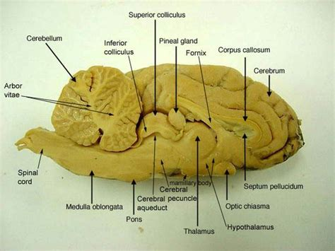 sagittal section of brain labeled sagittal section lateral ventricle sheep s brain http