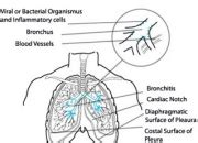 Chronic Obstructive Pulmonary Disease The Full Wiki