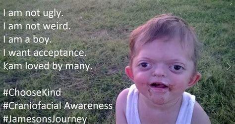 pug child meme a s fierce response to pug meme mocking 4 year s genetic