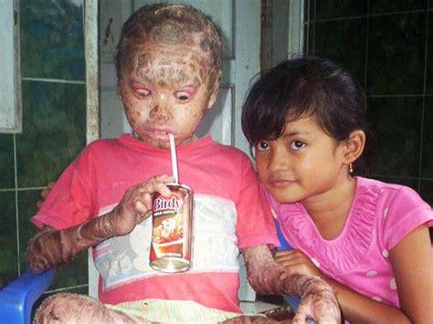 imagenes raras e insolitas las enfermedades m 225 s raras de la piel