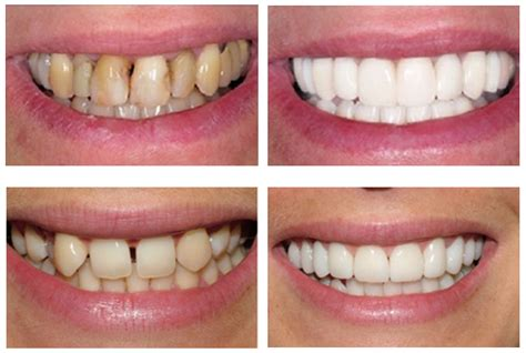 funda diente 191 precio de una funda dental 161 recibe gratis 3 presupuestos