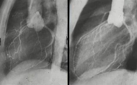 osm pavia personale osm istituto di radiologia universit 224 di pavia