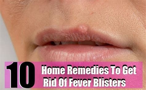 10 home remedies to get rid of fever blisters diy home