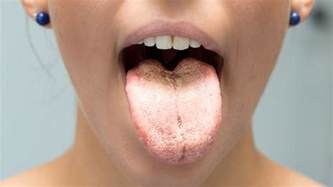 tongue color what does the color of your tongue reveal about your health