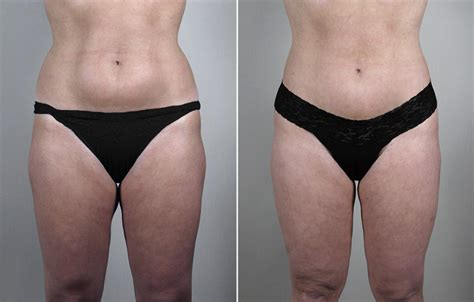 liposuction inner thighs thigh liposuction center for plastic surgery