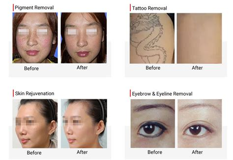 yag laser tattoo removal before and after q switched nd yag laser removal machine for sale