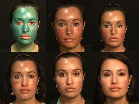 light chemical peel before and after monaco rejuvenation spaobagi blue peel 174 and alumier md
