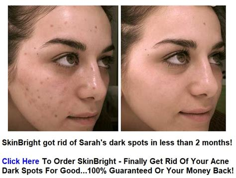 how to get rid of light spots on how to get rid of light spots on skin