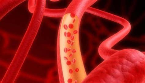 Livextra Melancarkan Pembulu Darah melancarkan peredaran darah anda dengan mengkonsumsi makanan yang satu ini