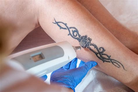 erase tattoo removal why laser removal is the preferred treatment option