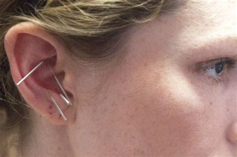 Acu Detox Ear by Needles Keep Addiction At Ear S Length Local News