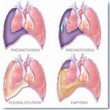Pleural Effusion Vs Pneumothorax | 400 x 400 jpeg 62kB
