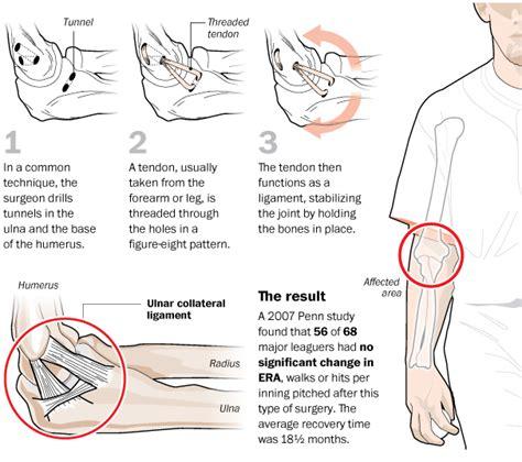 How tommy john surgery works the washington post