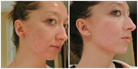 Detox After Accutane accutane before and after cas