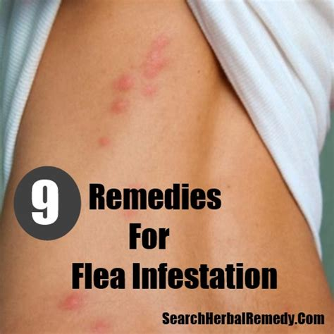 flea bites effective home remedies and treatments 7