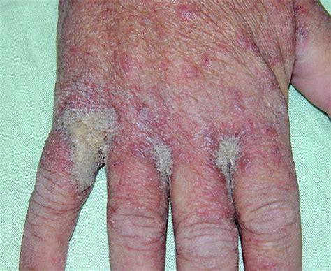 derma scabies by aquafish scabies الجرب النرويجي