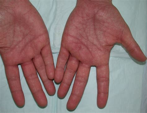 parvo disease parvovirus b19 junglekey fr image