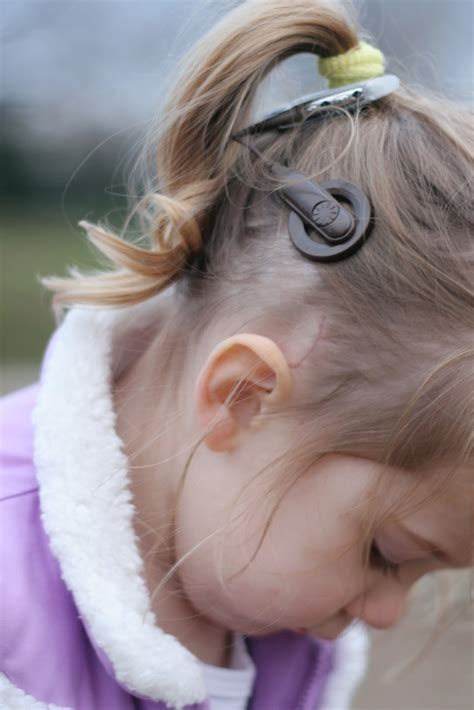 ponytail hearing aid all about the cochlear implant ci messymom