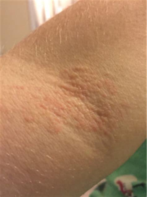 rash on inner arm rash on inner arm fold june 2017 babies whattoexpect