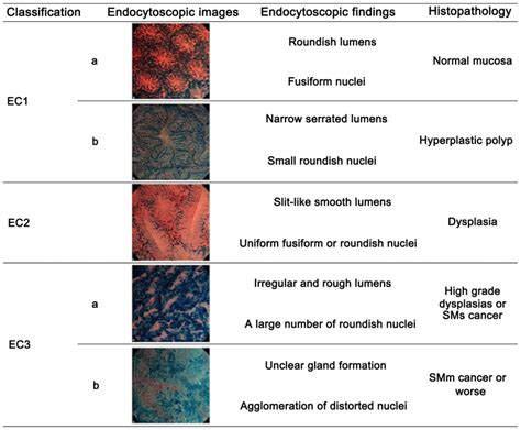 pattern of classification in vivo detection of desmoplastic reaction using