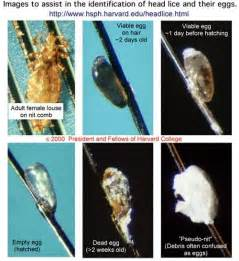 what color are dead lice eggs school lice pediculosis information copy