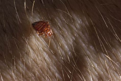 bed bugs  hair symptoms pictures  treatment