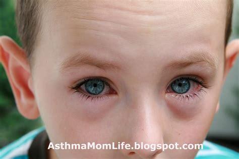 eye allergies my as an asthma argh allergies