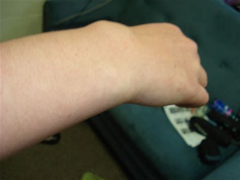 tattoo on wrist swollen swollen wrist related keywords swollen wrist long tail