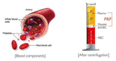 protein rich plasma prp platelet rich plasma a spa at rizzieri