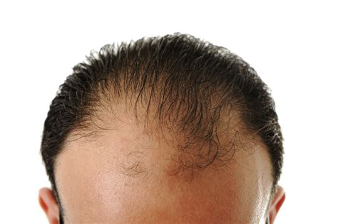 pattern hair loss cure hair loss treatments bald pattern treatment spamedica