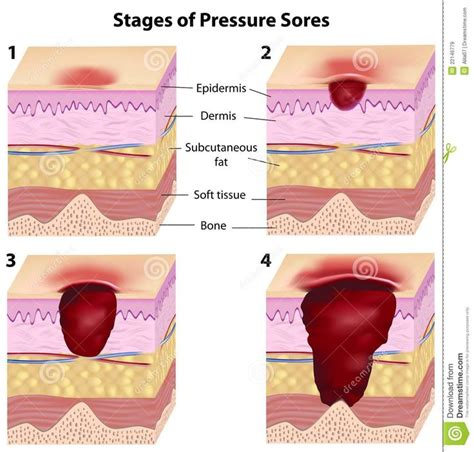bed sores stages bed sore stages 28 images pressure sores bedsores