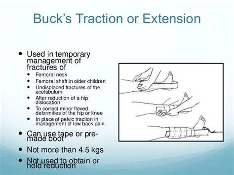 how to set up bucks traction presentation for skin traction