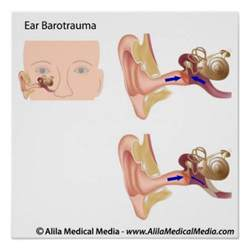 ear barotrauma diagram poster zazzle