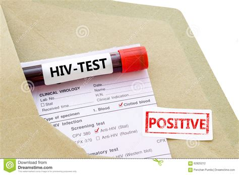 Hiv Tes blood sle with hiv test positive stock photo image