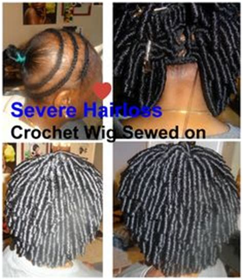 crochet style on balding hair braid down for crochet install on a guest with alopecia