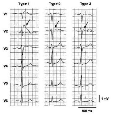 brugada pattern types brugada syndrome practice essentials background