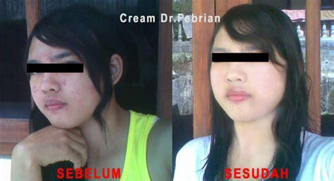 Naturelle Skincare Paket Besar Exclusive perawatan paketkosmetik